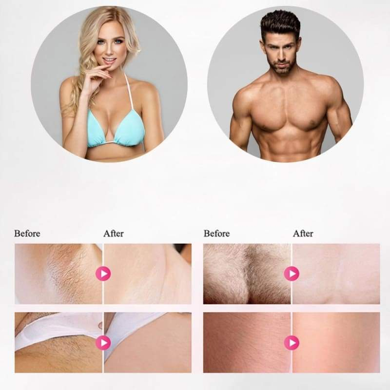 Laser Hair Removal Machine Just For You - Beauty Product1