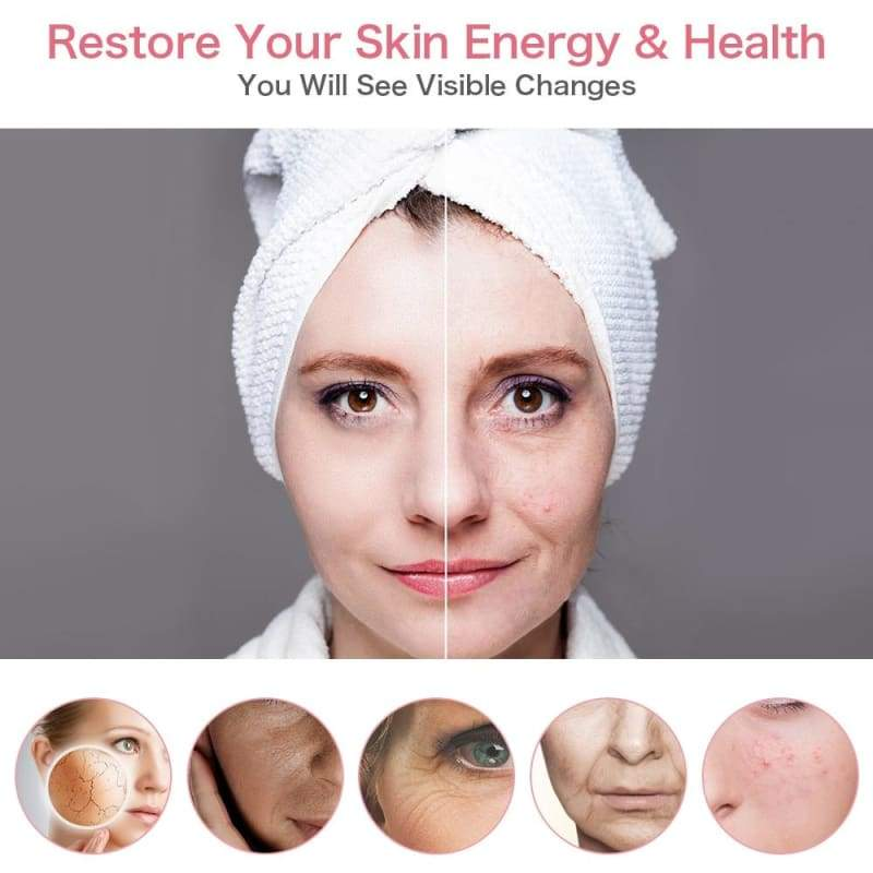 LED Skin Tightening Device Just For You - Beauty Product